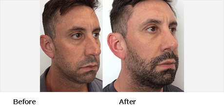 Rhinoplasty Before and After Pictures Boynton Beach, FL