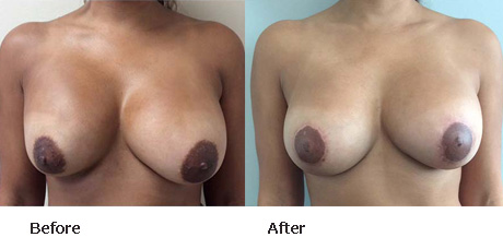 Breast Lift Before and After Pictures Boynton Beach, FL