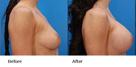 Breast Augmentation Before and After Pictures Boynton Beach, FL
